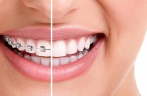 Orthodontist Den Haag, Orthodontist, Ortho Den Haag, Den Haag, Orthodontie, Orthodontist praktijk